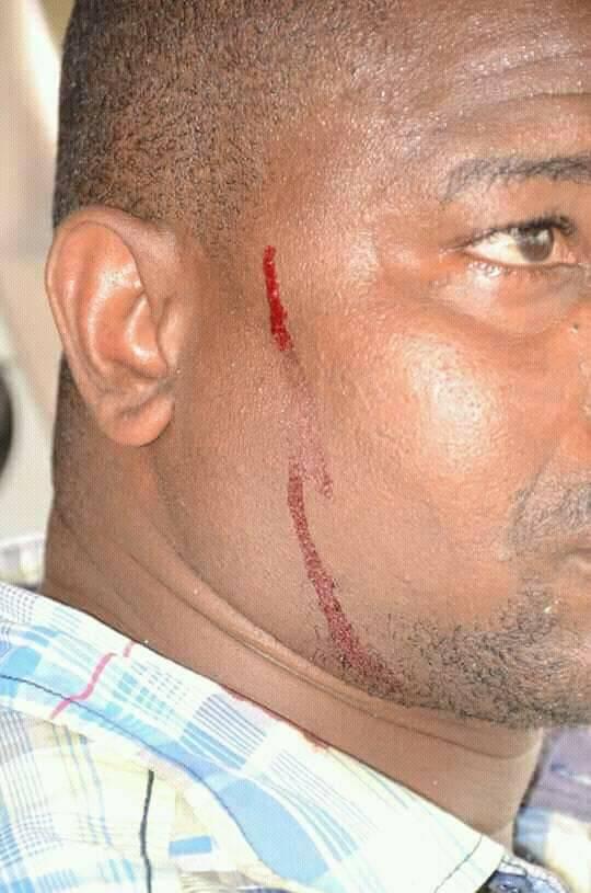 Le chauffeur  de Cellou Dalein blessé par les policiers ?