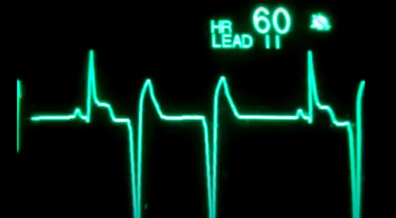 Cliniquement morte pendant 45 minutes, une américaine ressuscite !